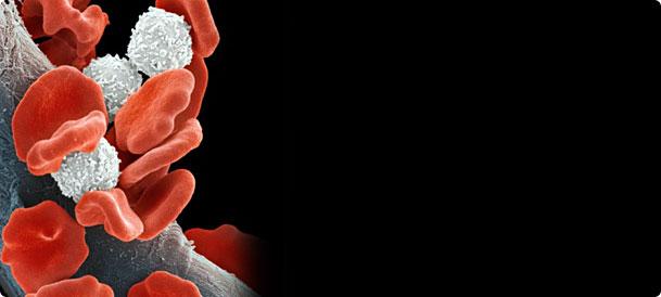 Bleeding Symptoms Symptoms Causes Treatments Better